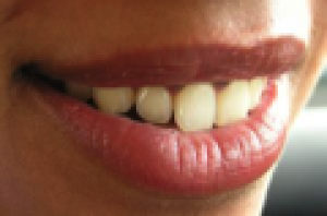 tanden.png